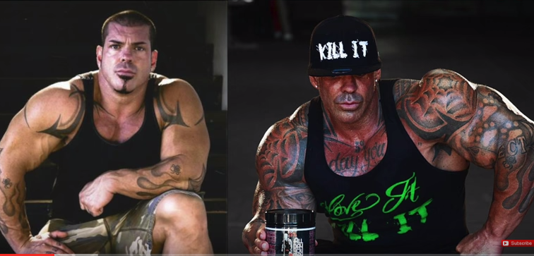 rich piana plastic surgery